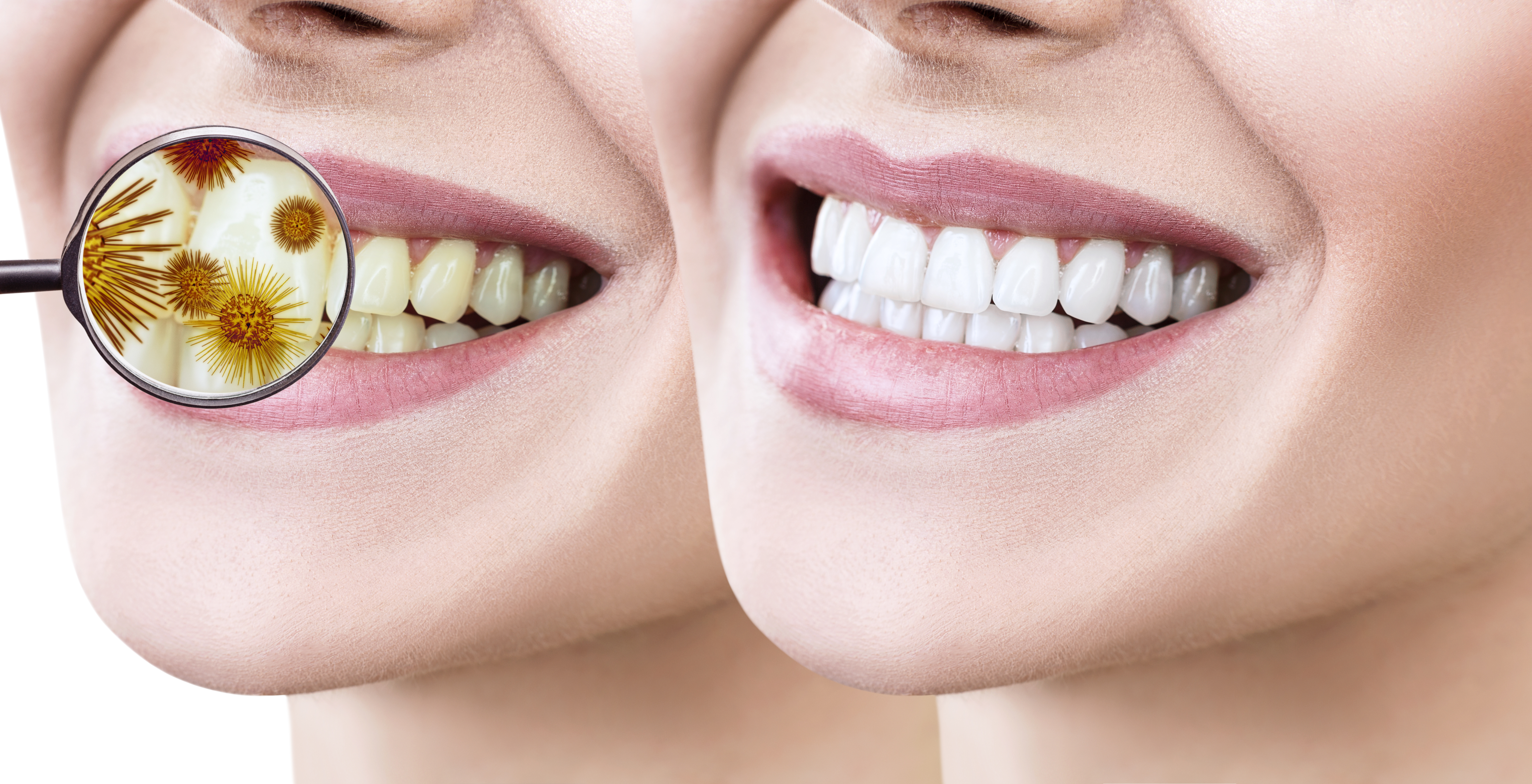what is zoom whitening treatment