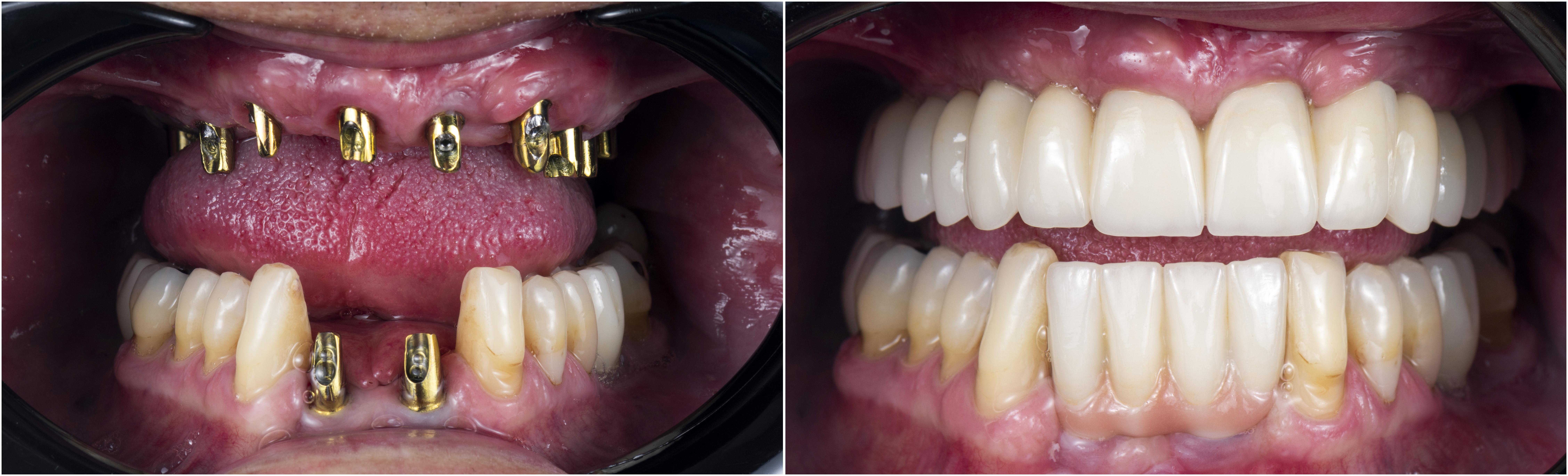 dental implants before and after viviane trinh dmd