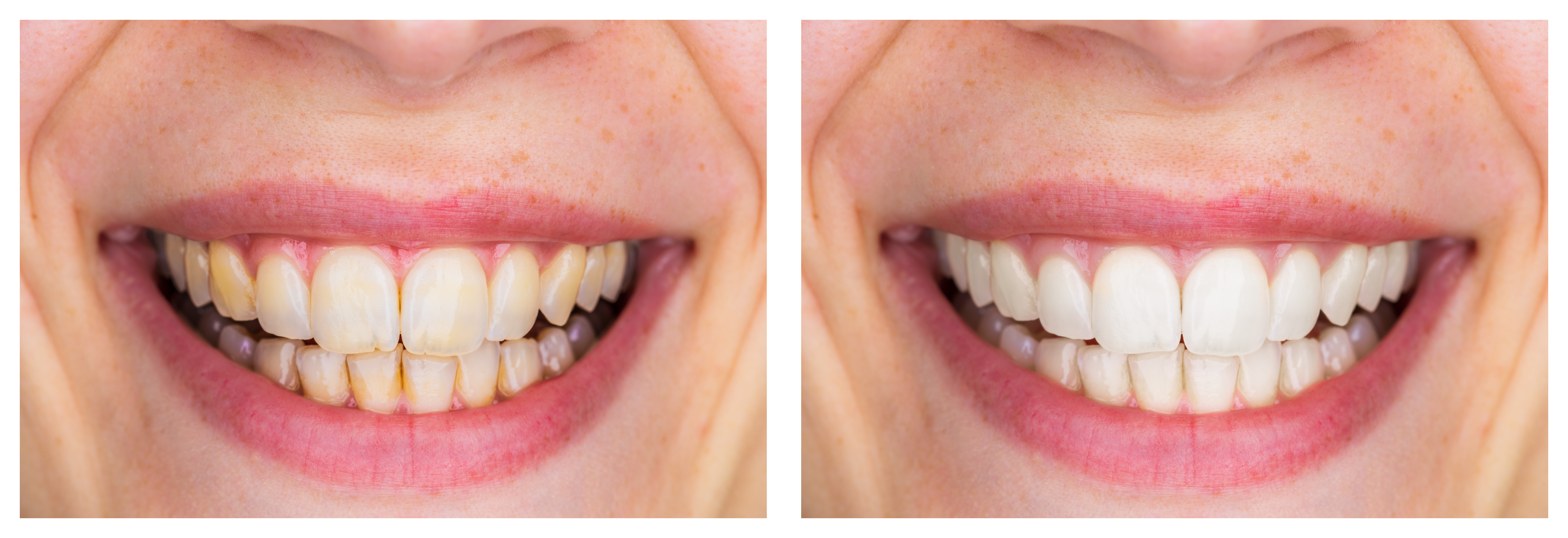 teeth whitening before and after photo viviane trinh dmd